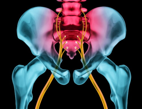 The Functional Cause of Sciatica