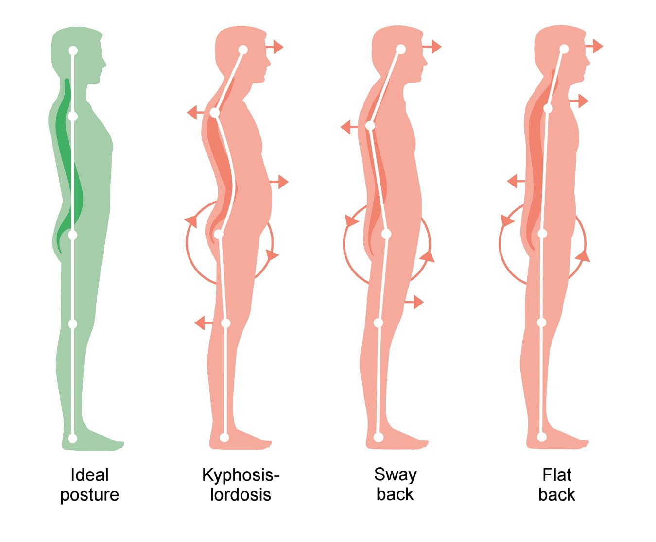 Habitual postures