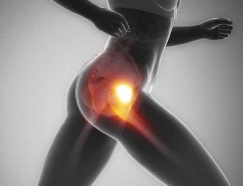What's Causing Your Snapping Hip Syndrome?