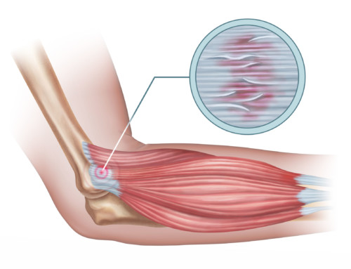 Tendinitis vs. Tendinosis: What's the Difference? And 8 Steps to Recovery
