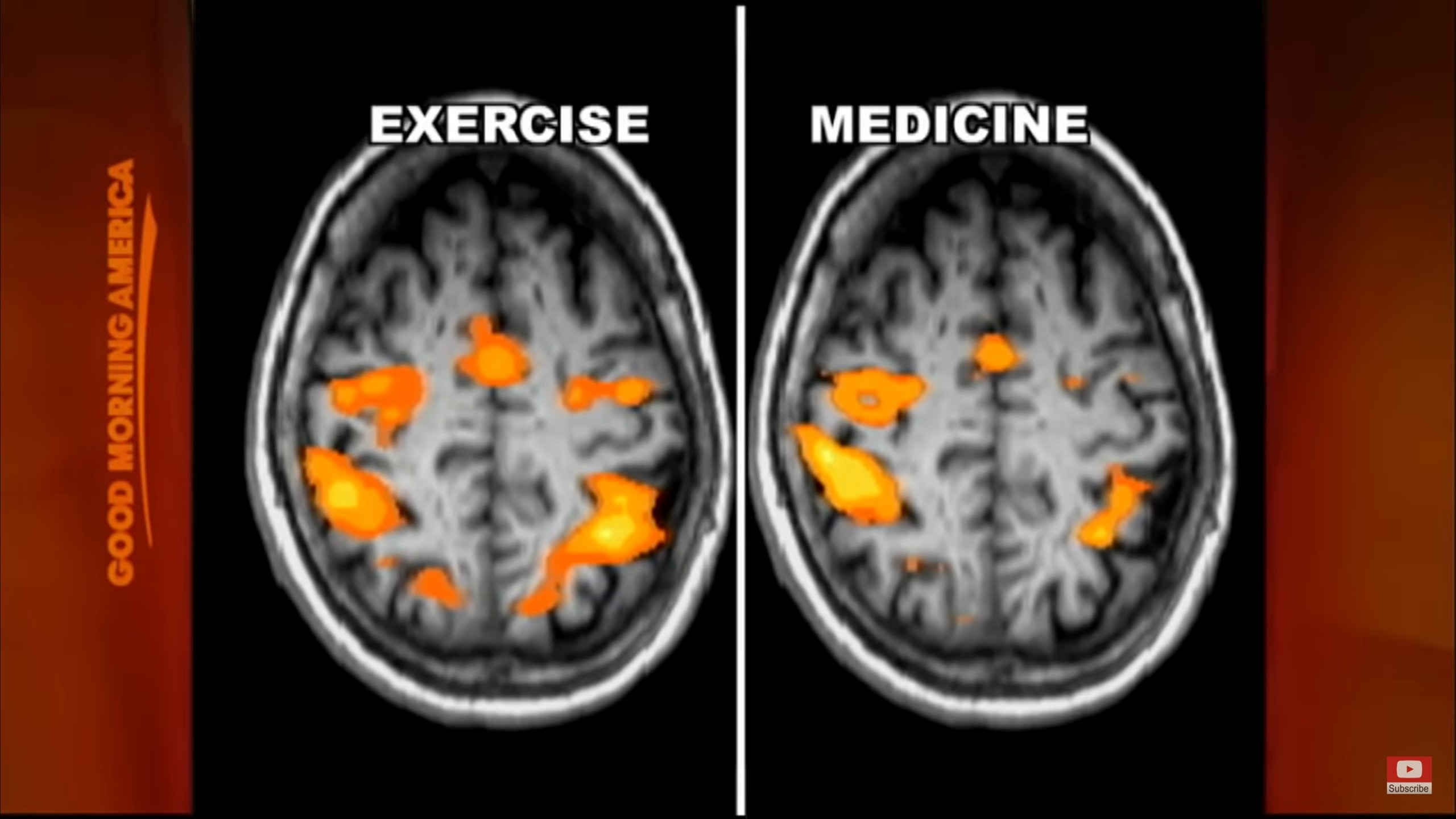Parkinson's Forced Exercise vs Medication Brain Scans